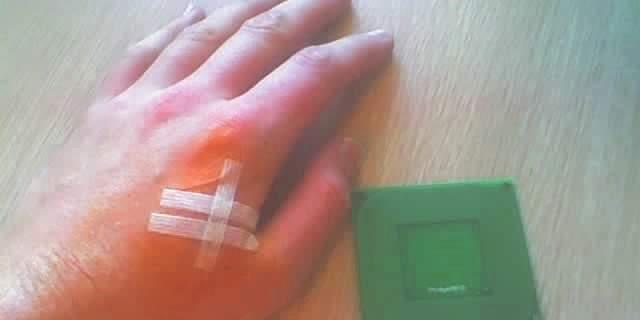 utilizarea microcipului implantat sub piele