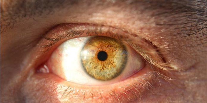 Ochi galbeni